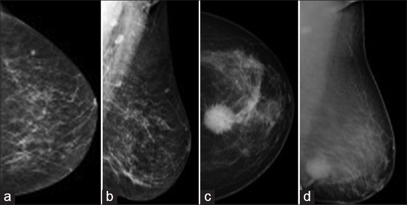 Figure 4: Breast lesions on mammography: (a) Benign: Well-circumscribed.