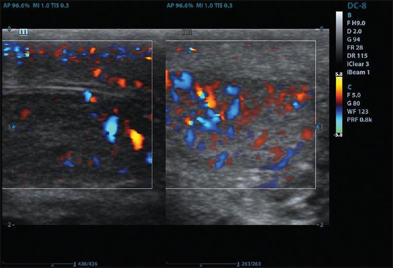 Scrotal doppler ultrasound evaluation in Zaria, Nigeria